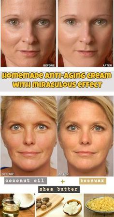 Learn how to make a homemade anti-aging cream with miraculous effect. #homemadewrinklecreamshowtomake
