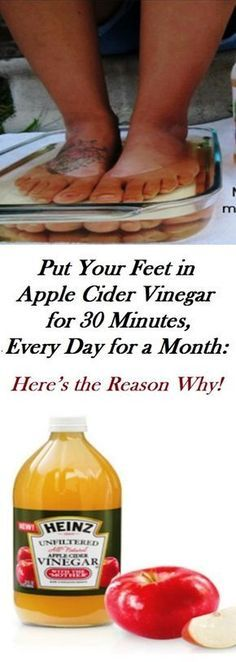 Health Remedies Apple cider vinegar (ACV) is a remarkable compound known for its various amazing benefits. Its use is of wide spectrum starting from medicinal to household matters. Further below, you will see a video that covers twenty different benefits. Health And Wellness, Health Tips, Health Benefits, Benefits Of Acv, Health Care, Apple Cider Benefits, Apple Cider Vinegar Remedies, Apple Cider Vinegar Uses, Home Remedies