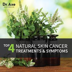 Top 5 Skin Cancer Symptoms & 4 Natural Treatments  http://www.draxe.com #cancer #treatment #natural