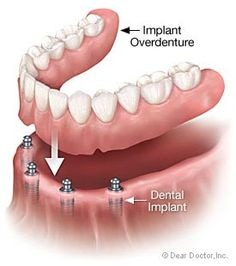 Removable Implant-Supported Tooth Replacement