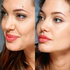 Webrhinoplasty.com Beauty Makeup, Face Makeup, Hair Beauty, Angelina Jolie Plastic Surgery, Ariana Grande Nose, Rhinoplasty Before And After, Perfect Nose, Celebrities Before And After, Girl Celebrities