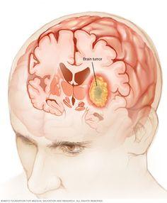 TU SALUD Y BIENESTAR : Los Síntomas De Tumores Cerebrales