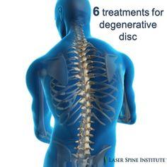 Degenerative disc disease is the gradual deterioration of discs between vertebrae. SHARE these 6 treatment options