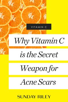 Vitamin C Serum is a professional strength Vitamin C serum that instantly brightens the look of your skin and fights the signs of lines and wrinkles. Acne Skin, Acne Scars, Face Care Routine, New Hair Growth, Grow Long Hair, Dry Brushing, Skin Tips, Diy Hairstyles, Hair Loss