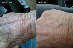 Rodan + Fields ANTI-AGE Hand treatment. Before and After photo. Go to: debikoenig.myrandf.com and give your skin a summer makeover!