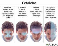 Sinusites, cefaleias, tensões e enxaquecas afetam o corpo de diferentes maneiras