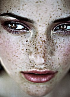 freckles..beautiful