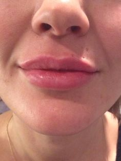 Natural Looking Lip Injections.  Actual Patient Trilogy Medical Center.  Clinical Nurse Specialist Jennifer Cline R.N.