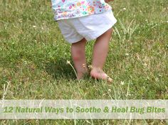 12 Natural Ways to Soothe & Heal Bug Bites » Nature Moms