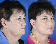 Vicky – Youthful Reflections Facelift / Reflection Lift Fractional Co2 Laser Skin Resurfacing