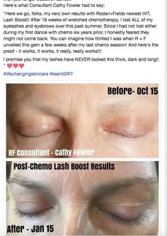 Lashes after chemotherapy. Eyelashes, Eyebrows, Crows Feet, Rodan And Fields, First Dance, Sensitive Skin, Lashes, Eye Brows, Brows