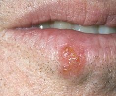 Eight Excellent Natural Remedies For Cold Sores