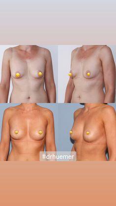 Bei dieser Patientin habe ich eine gleichzeitige Korrektur der Brustform durch Straffung rund um die Brustwarze sowie eine Eigenfettbrustvergrößerung durchgeführt. Breast, Swimwear, Fashion, Wels, Round Round, La Mode, Fashion Illustrations, Fashion Models