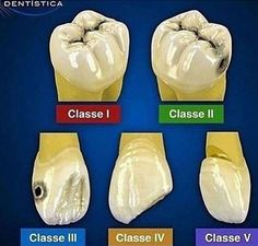 Dr. Greene Vardiman Black's Classification of Caries Lesions Dentaltown - Greene Vardiman Black (1836–1915), commonly known as G.V. Black, is known as the father of modern dentistry in the US.