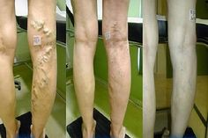 Varicose veins can affect anyone and there are many factors that could cause it. This condition can be quite annoying for you. It...