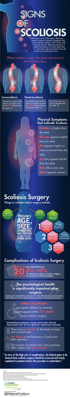 Signs of Scoliosis [infographics]