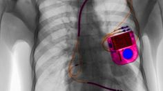 Man busted for arson after his pacemaker snitched on him Image:  Cultura/REX/Shutterstock  By Brett Williams2017-02-02 18:19:03 UTC  A story out of small-town Ohio currently making the rounds online should serve as a cautionary tale for would-be crooks: if youre gonna lie to the cops make sure youre not wearing any tracking devices that could throw off your alibi.  A 59-year-old man from Middletown Ohio was indicted on charges of arson and fraud after police inspected data from his pacemaker…
