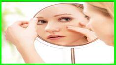 Beneficios del Aloe Vera para la Cara y el Acné