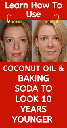 Learn how to use coconut oil and baking soda to look 10 years younger than usual! This remedy is very powerful and you will be shocked by the results! Women all over the world are using baking soda an is part of Younger skin - Oily Skin Care, Face Skin Care, Anti Aging Skin Care, Skin Care Tips, Natural Skin Care, Au Natural, Natural Cures, Dry Skin, Natural Health