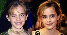 Emma Watson in 2001 and 2009