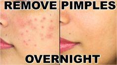 How To Remove Pimples Overnight | Acne Treatment | ShrutiArjunAnand. #Acne, #GetClearSkin, #GetRidOfAcne, #GetRidOfPimples, #GetRidOfPimplesAtHome, #GetRidOfPimplesFast, #GetRidOfPimplesNaturally, #GetRidOfPimplesOvernight, #HomeRemedy, #HowToGetRidOfPimples, #HowToRemoveAcne, #HowToRemovePimples, #IndianBeautySecrets, #NaturalRemedy, #Pimple, #Pimples, #RemovePimplesFromFace, #RemovePimplesNaturally, #ShrutiSkincare, #Shrutiarjunanand, #Skincare, #SkincareSecrets, #SkincareT