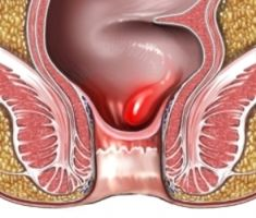 Hemorrhoid Relief Using Essential Oils