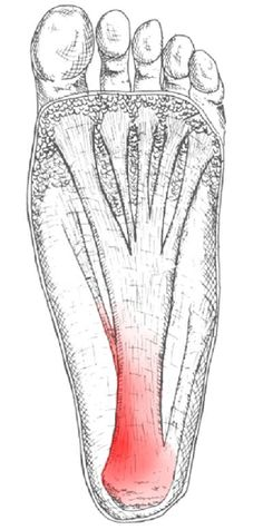 plantar fasciitis is