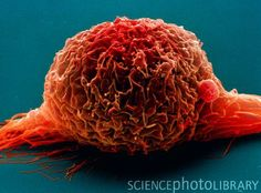 Bladder cancer cell. SEM of a bladder cancer cell. Its several long cytoplasmic projections may enable it to be motile. Most bladder cancers arise in the bladder lining.