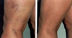 Simple Tips to Get Rid of Spider Veins – 1K Recipes!