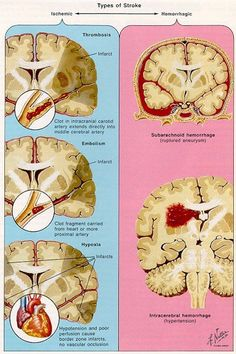 Cerebral Strokes. The two major mechanisms that cause brain damage in stroke are, ischemia and hemorrhage. In ischemic stroke there is decreased or absent circulating blood deprives neurons of essential substrates. Ischemic stroke represents about 80% of all strokes.