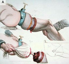 Panel A is a drawing by Charles Bell from 1821 showing the circular method of amputation.9 Panel B shows the flap method of amputation being used in 1837, with an assistant retracting the tissue flap to allow the surgeon to saw through the femur.10