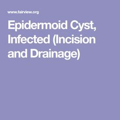 Epidermoid Cyst, Infected (Incision and Drainage)