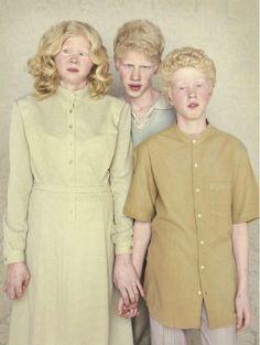 Dangerous Minds | Albinos