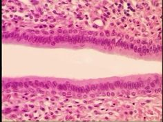 Stratified Columnar Epithelium, basal cells usually cuboidal superficial cells elongated and columnar, rare in body