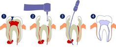#RootCanal #Complications You Should #Know