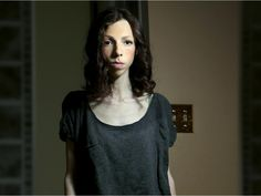 'She could be so much,' Ottawa parents say of anorexic daughter (with video)