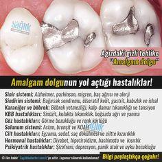 Ağızdaki gizli tehlike: Amalgam dolgu‼️   Dünyanın birçok ülkesinde amalgam dolgu yasak. Ancak Türkiye'de diş hekimlerinin çoğu bu çeşit dolguyu tercih ediyor. #sağlık #saglik #sağlıkhaberleri #health #healthnews @saglikhaberleri Natural Healing, Health Fitness, Pimples, Compost, Container, Cases, Salud, Medical, Health