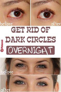 How to use baking soda to get rid of dark circle - Under Eye Wrinkles Dark Circles Around Eyes, Dark Circles Makeup, Reduce Dark Circles, Dark Circles Treatment, Eye Treatment, Skin Treatments, Beauty Care, Beauty Hacks, Skin Care
