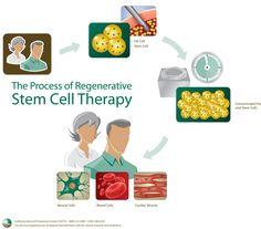 California Stem Cell Treatment Center