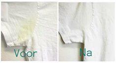 Na een aantal maanden of jaren krijg je vaak lelijke gele vlekken in je mooie witte shirts, dat is natuurlijk super zonde. Je zult ze vast al meerdere keren gewast hebben in de wasmachine met