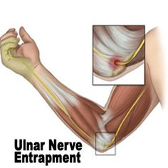 Ulnar Nerve Exercises | ulnar nerve pain, chiropractor bloomington il