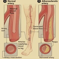 Best Natural Remedies For Poor Circulation