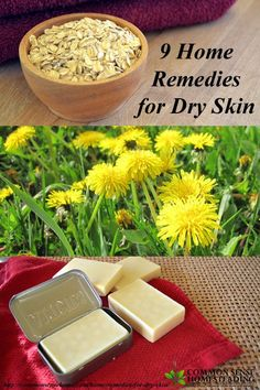 """Colder temps often lead to dry indoor air, and with dry air often comes dry skin and chapped lips.  I've pulled together 9 home remedies for dry skin, along with tips for avoiding dry skin year round.  From coconut oil to backyard weeds, we'll help relieve winter dry skin and eczema and sooth itching and cracking."""