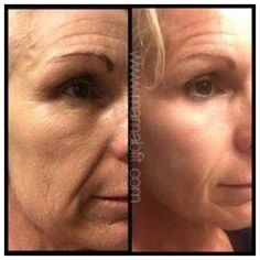 Get these results for under $46/month OR $29/month instead of botox's crazy $100+ pricing per session! Wrinkles, fine lines and plump lips for less! www.mamabfit.com