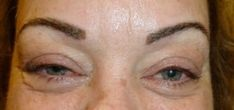 Eyebrow and eyelash enhancement #Eyebrows http://www.radiantmedspa.net/