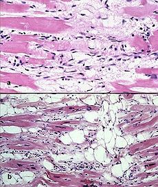 In a study published yesterday, a team of researhers from the Sanford-Burnham Medical Research Institute and Johns Hopkins University describe how they created a new model for studying the Arrhythmogenic right ventricular dysplasia (ARVD) heart disease, by using induced pluripotent stem cells (iPSCs). According to the researchers, their model surpasses the existing ones, being way more suitable for both studying the condition and investigating new drugs and therapies.