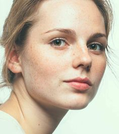 10-Home-Remedies-To-Cure-Dark-Spots-On-Your-Skin