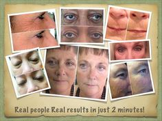 Instantly Ageless Before & After + MORE! - Forever Young