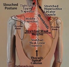 How Destabilized Shoulder Blades cause Neck and Upper Back Pain: Because the Rhomboids, and Middle and Lower Trapezius muscles are stretched and weak, the work of anchoring the shoulder blades to the spinal column passes to the Levator Scapula and Upper Trapezius, both of which can't avoid their anatomical role of suspending the shoulder blades from the neck/cervical spine.