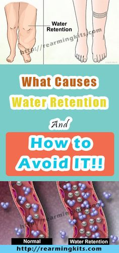 What Causes Water Retention And How to Avoid IT!!